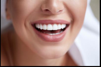 Bright, white teeth