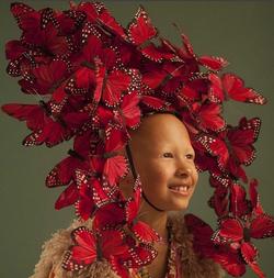 Alopecia Awareness Campaign