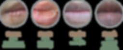 Lip-Problem.png