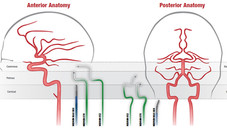 Neuron™System