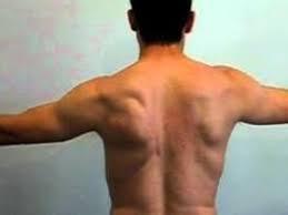 Tennis & associated pain; cause & treatment