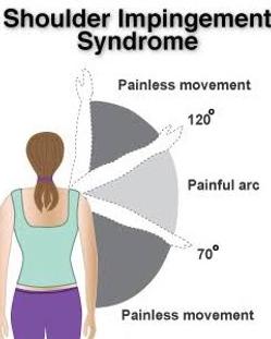 Shoulder impingement syndrome painful ar