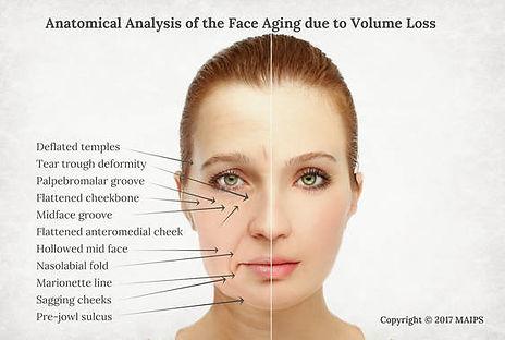 face-aging-anatomical-analysis.jpg