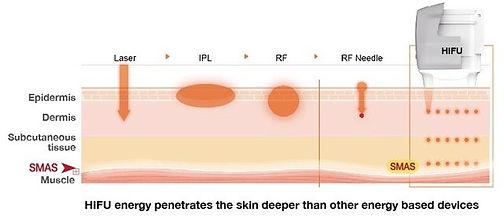 HIFU- Comparison Laser IPL RF.jpeg