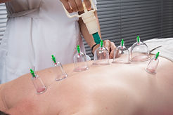 Cupping therapy, myotherapy, dry needling