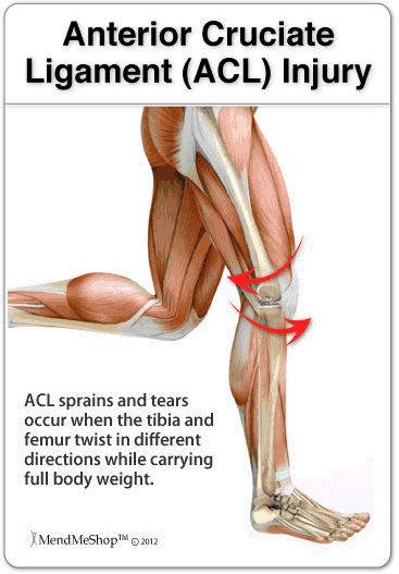 The anterior cruciate ligament (ACL) is one of the key ligaments that help stabilize your knee joint. The ACL connects your thighbone (femur) to your shinbone (tibia). It's most commonly torn during sports that involve sudden stops and changes in direction — such as basketball, soccer, tennis and volleyball.