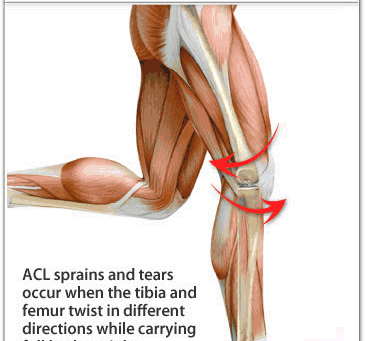 ACL Reconstruction - Listen to your Knee