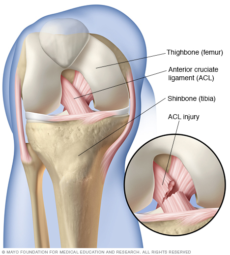The tearing of the anterior cruciate ligament can be partial or full tear, may require grafting, reconstruction surgery.