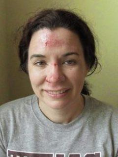 Devon Noel Lee smashed face
