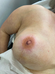 The Art of 3D nipple tattooing