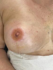 3D Nipple tattoo over Scar