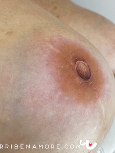 Hyper Realism - 3D Areola Tattoo
