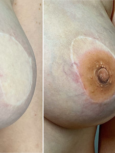Before and After hyper-realistic nipple tattooing