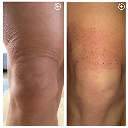 Before and After - knee.png
