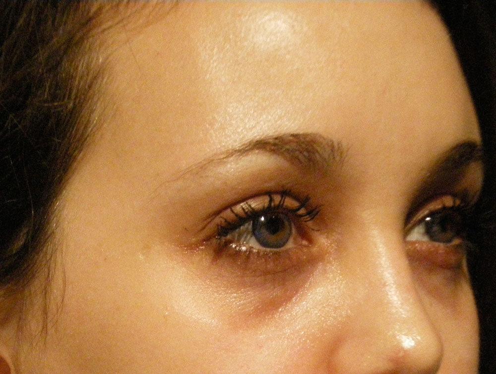 Augenring Behandlung