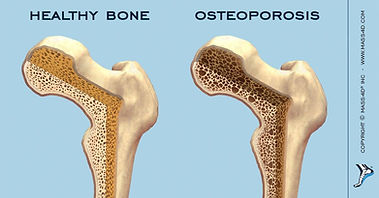 06_28_2017__Osteioporosis_In_Boon_65ad3a