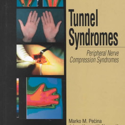 TunnelSyndrome.jpg