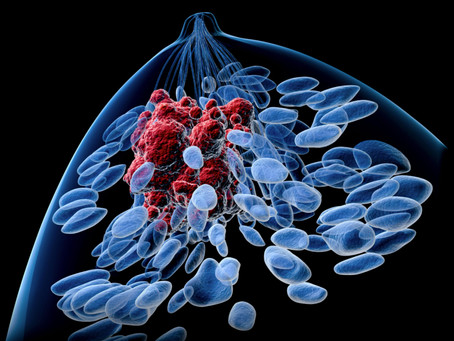 Breast Cancer Metastases Supported by Bone Microenvironment