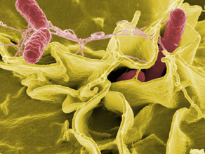 Salmonella Swimming Patterns Help Researchers Dive Deeper into Understanding Infection