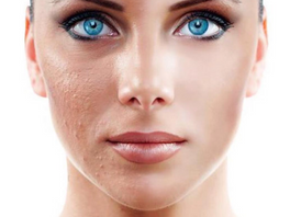 Do Acne Facials Work to Clear Pimples?