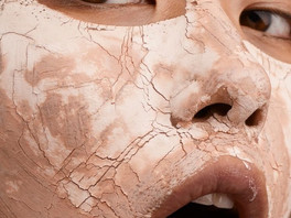 My Skin Is So Dry This Time Of Year! What Can I Do?