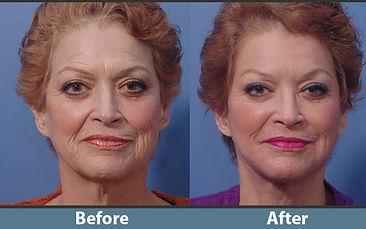 PRF Wrinkle.jpg
