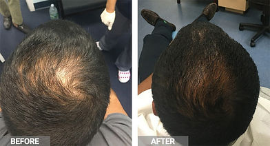 prp-for-hair-loss-before-after.jpg