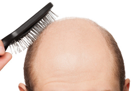 Hair Loss. Fact and Fiction.