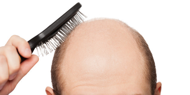 The facts about Hair Loss at Michael Brandon Styling Hair Salon in Greenville, NC. Hair Stylist and Barber in Greenville, NC offering Men's Salon and Women's Salon services near ECU and Uptown Greenville. Men's Haircuts, Women's Haircuts, Highlights, Hair Color, Keratin and Waxing.