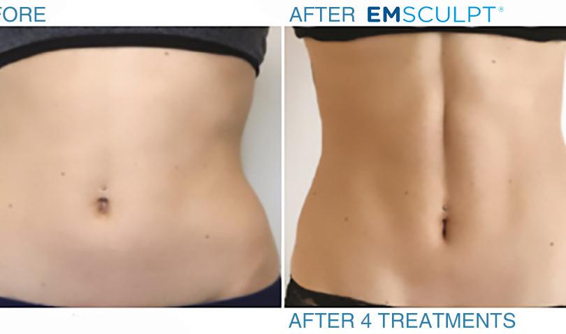 emsulpt-before-after