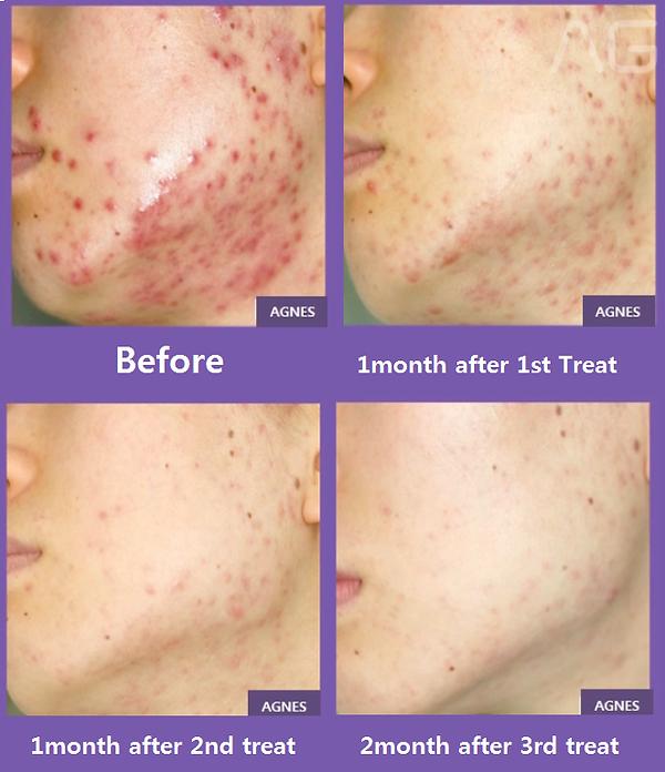 AGNES-acne.png