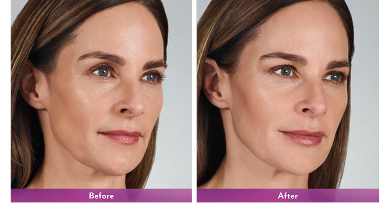 JUVÉDERM® Ultra and Ultra Plus