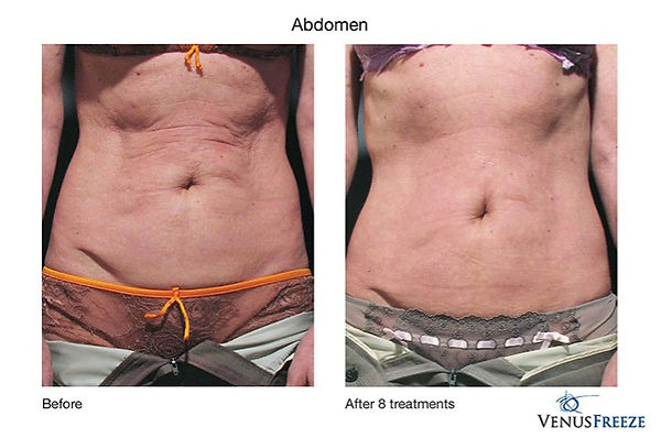 11-vf-abdomen.jpg