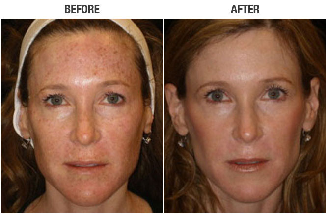 IPL beofre and after
