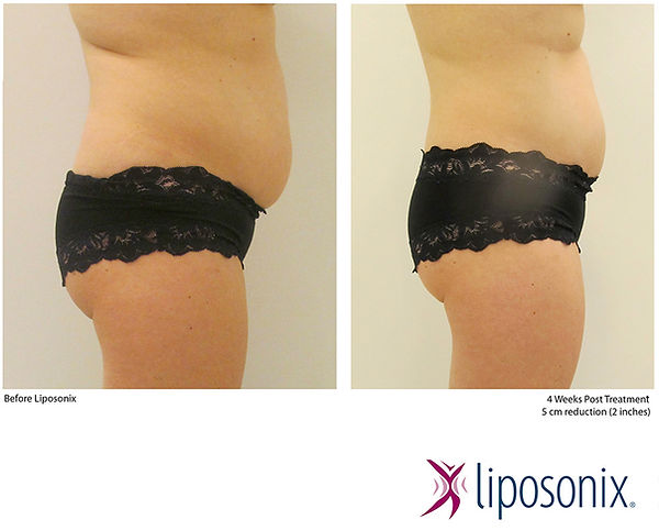 liposonix-before-and-after7.jpg