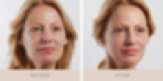 Thread-Lift-Before-and-After-8.jpg