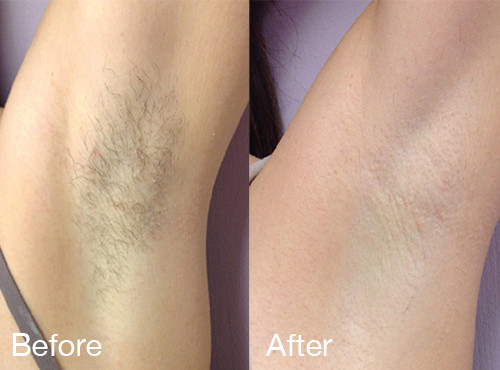 IPL hair removal beofre and after