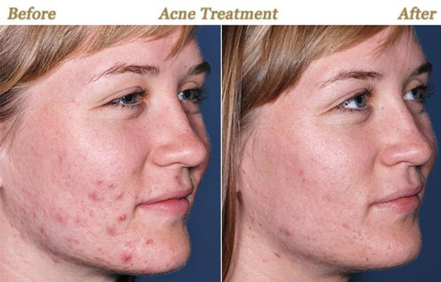 obagi-clenziderm-acne-treatment.jpg