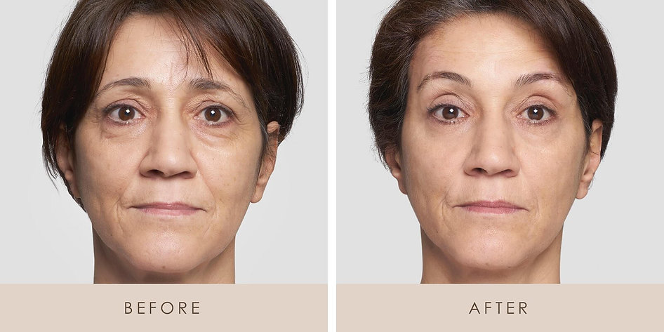 Thread-Lift-Before-and-After-2.jpg