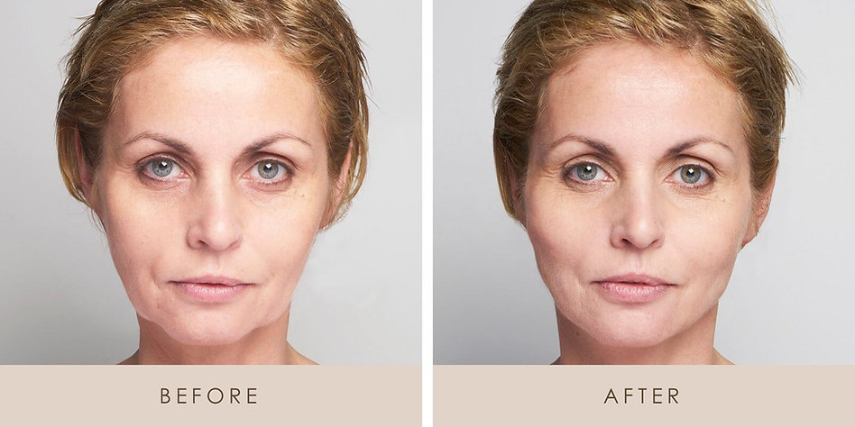 Thread-Lift-Before-and-After-1.jpg