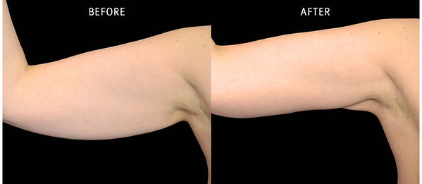 before-after-atlanta-exilis-ultra-arms-1