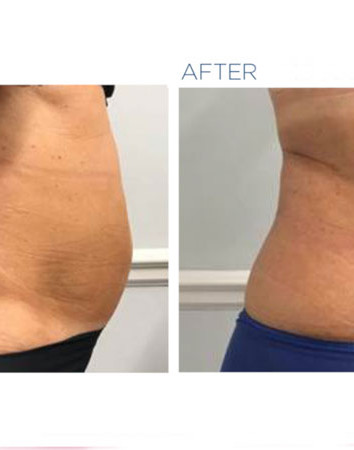Emsculpt before-and-after
