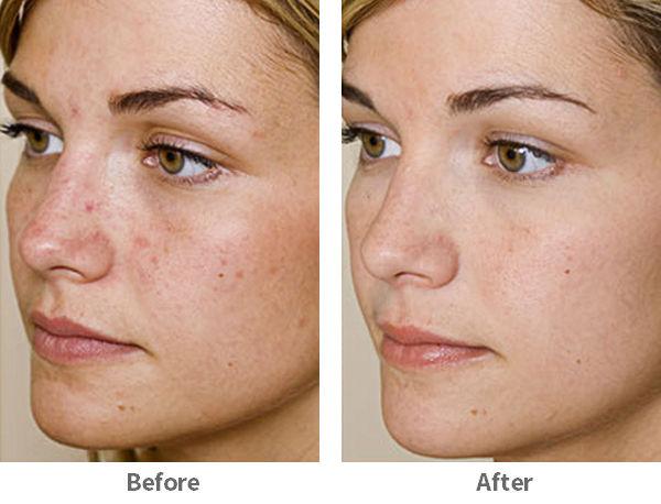 acne-3-ba.jpg