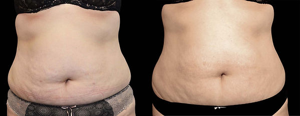 before-and-after-exilis-ultra-12.jpg
