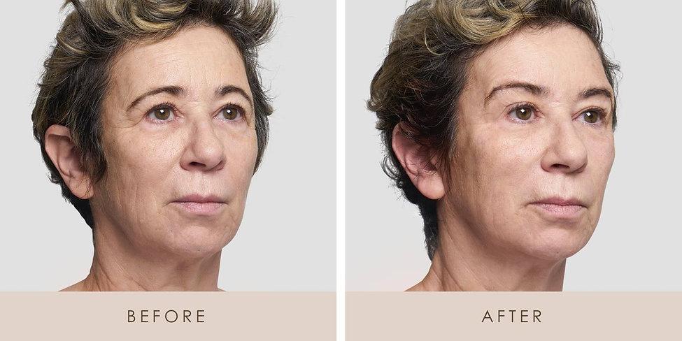 Thread-Lift-Before-and-After-3.jpg