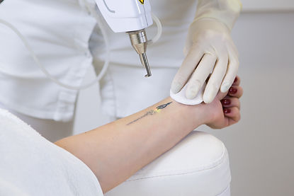 cosmetologist-doing-laser-tattoo-removal