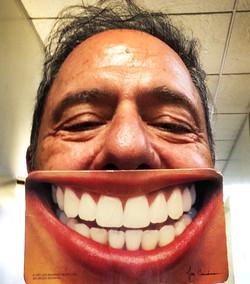 Tooth Selfie.JPG