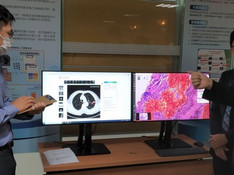 Speeding up lung cancer diagnosis with aetherAI's digital pathology AI