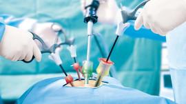 Cure de Hernie Inguinale par voie extraperitoneale coelioscopie
