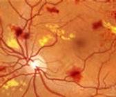 diabetic-retinopathy-120.jpg